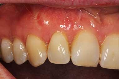 chirurgia odontoiatrica rigenerativa